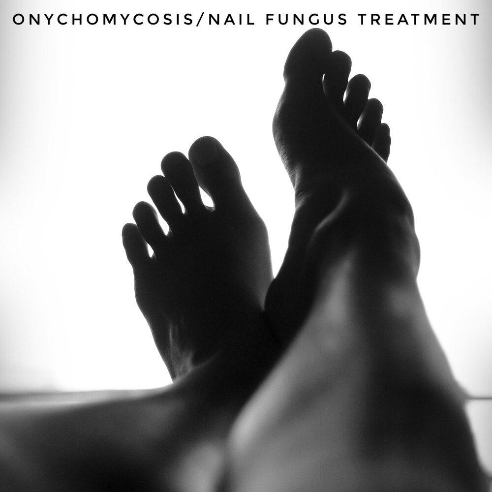 Onychomycosis/Nail Fungus Treatment Image