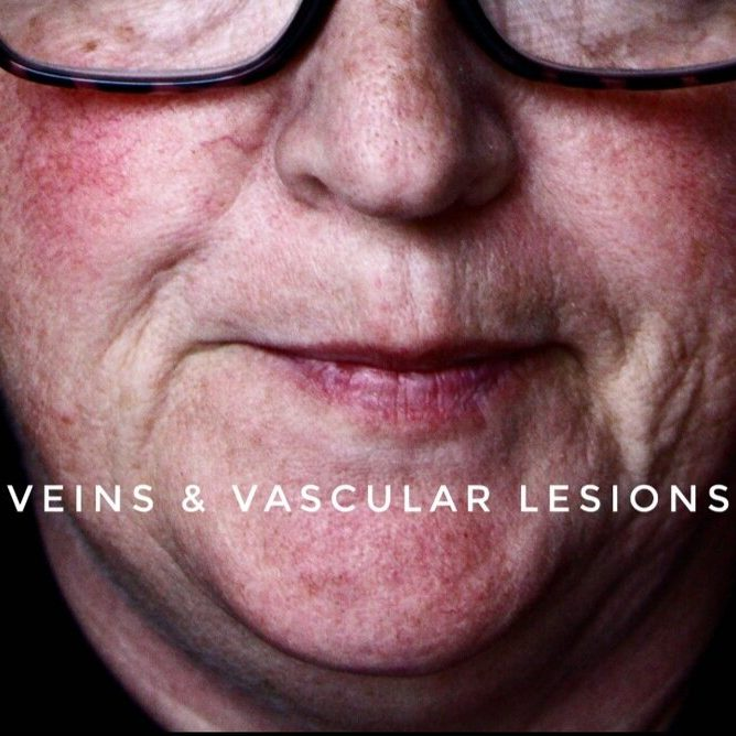 Veins & Vascular Lesions